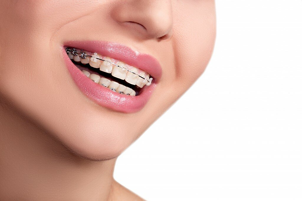 Dental Braces in Layton