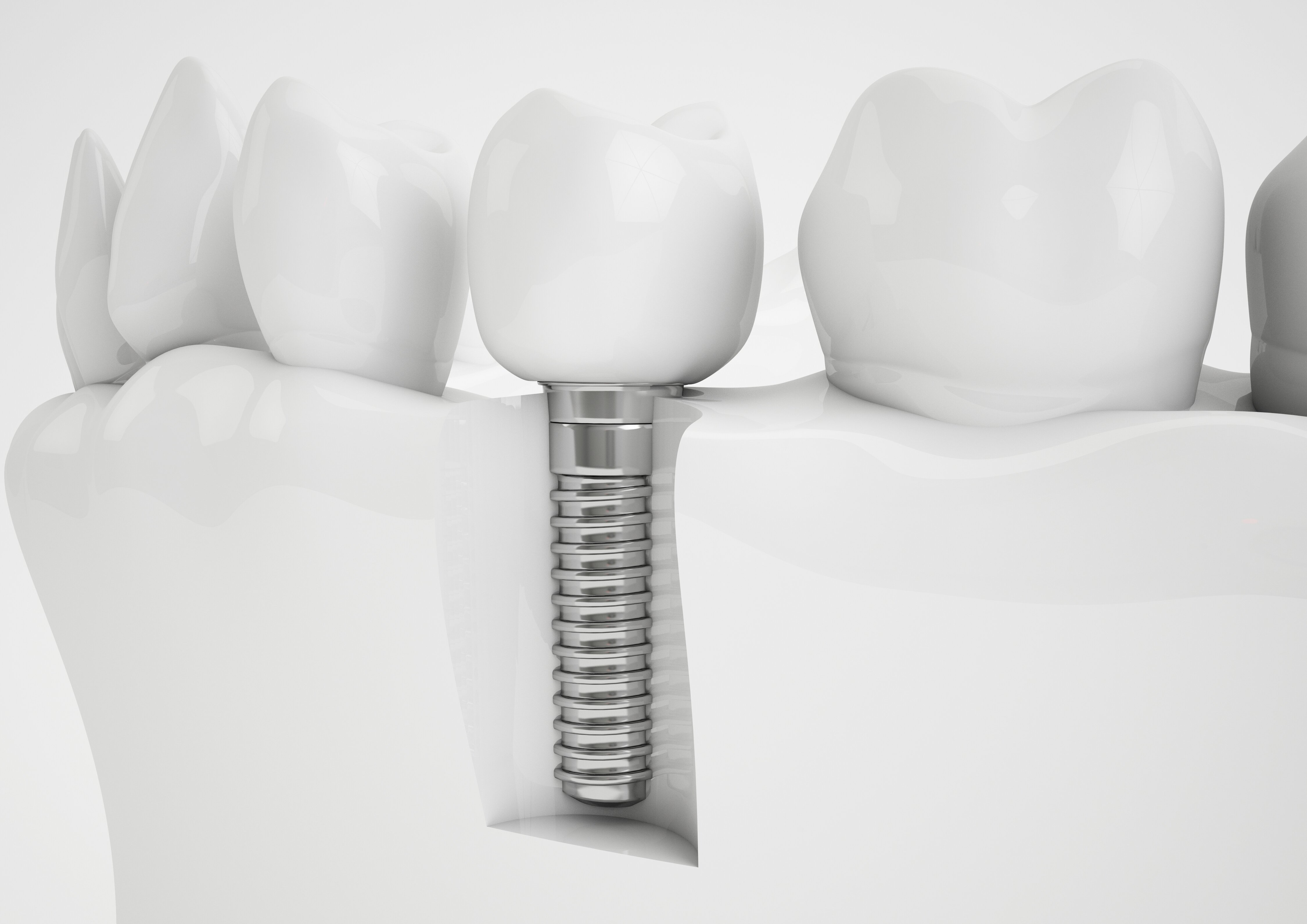 Concept of a dental implant