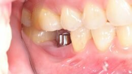 missing tooth implant